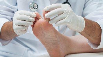 Изображение для статьи — Как можно избавиться от грибка на ногах?